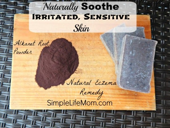 Naturally Soothe Irritated Sensitive Skin by SimpleLifeMom.com