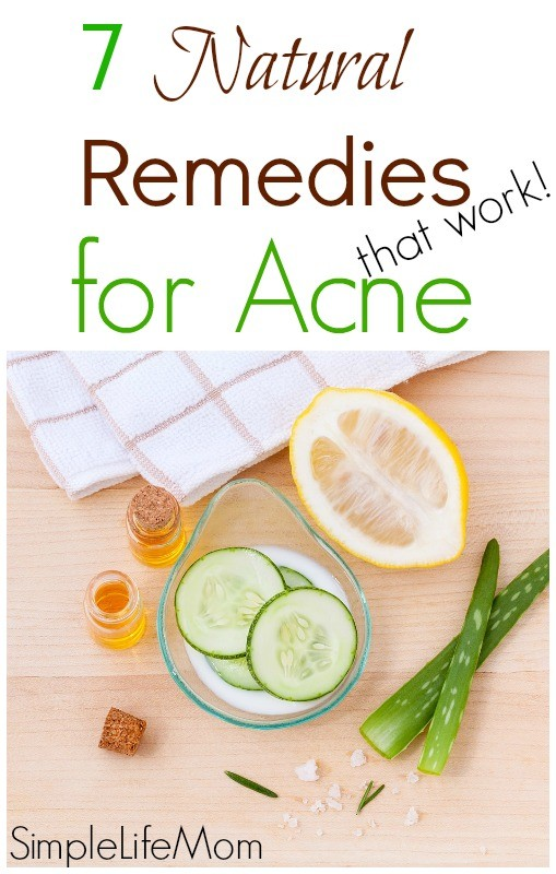 7 Natural Remedies for Acne that work from Simple Life Mom