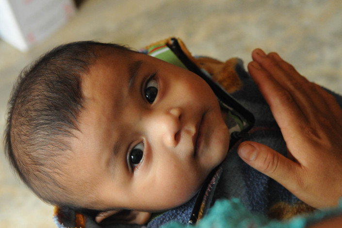 A 6-month-old is held by his mother at a health center in rural Guatemala.