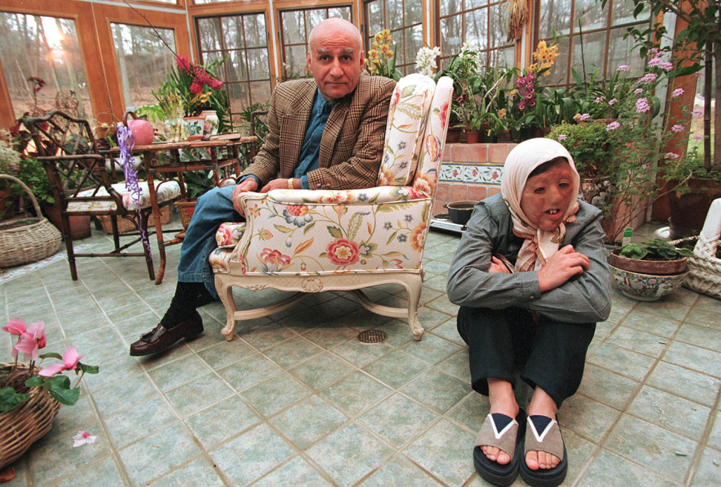 A young woman, her face scarred in an acid attack, sits in a lush outdoor garden with her adoptive father seated behind her.