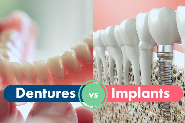 Dental Implants vs Dentures