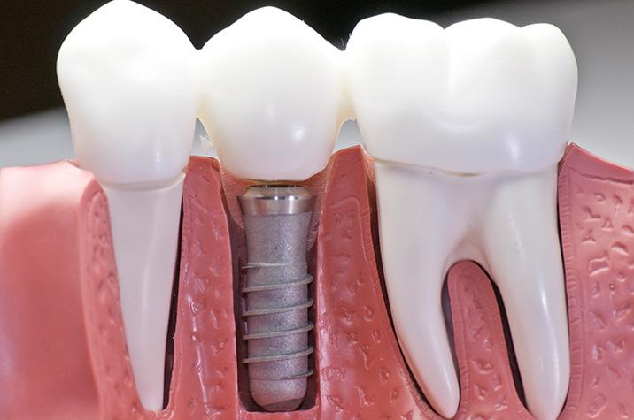 all on 4 dental implants