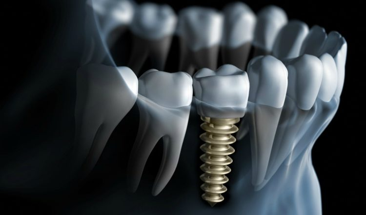 Osteointegration of Dental Implants