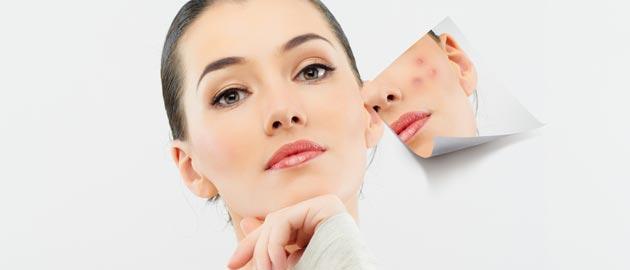Home Remedies for Dark Spots on Face.