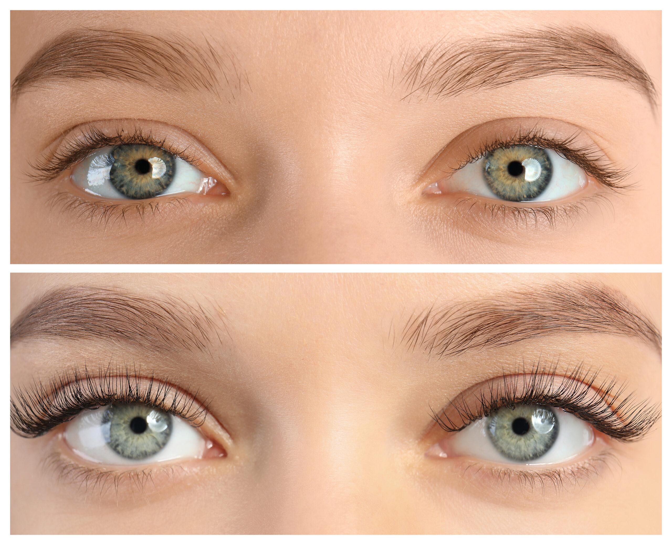 Eyelashes Latisse