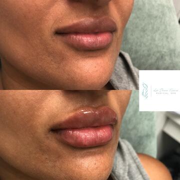 lip fillers toronto