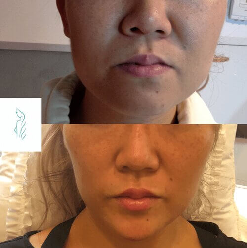 sculpting-before-and-after