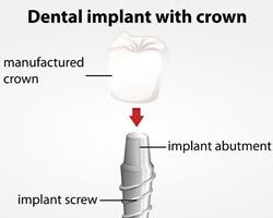 Nipomo-Family-Dentistry---Dental-Implant-Nipomo---implant
