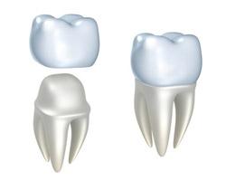 Nipomo Family Dentistry - Dental Work Nipomo - CAP