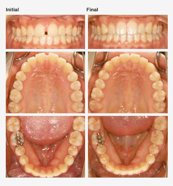 Rapid Orthodontics | Cosmetic Dentistry Center MA