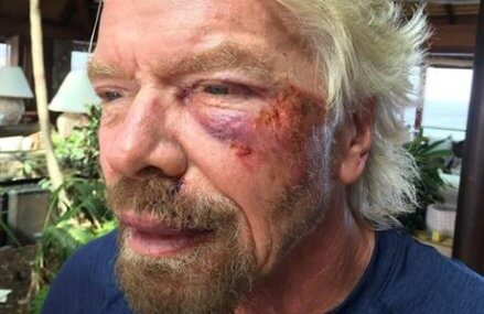 Billionaire Richard Branson survives bike crash