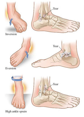 Foot-and-Ankle
