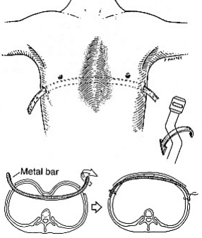 Nuss Procedure Diagram
