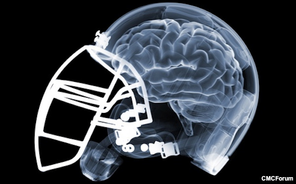 Concussion post 23 – How Newer Helmets Will Decrease Concussions
