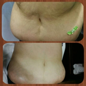 Ultrasonic Cavitation Reduces Fat