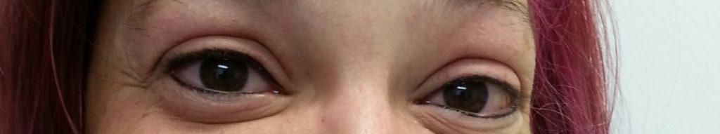 Permanent Makeup Eyeliner After In Tampa