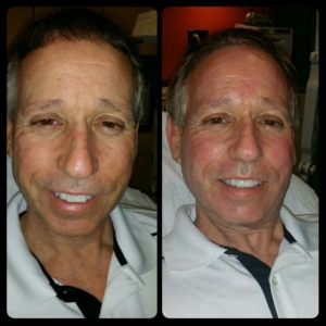 microdermabrasion before and after tampa
