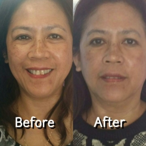 micropeel for hyperpigmentation