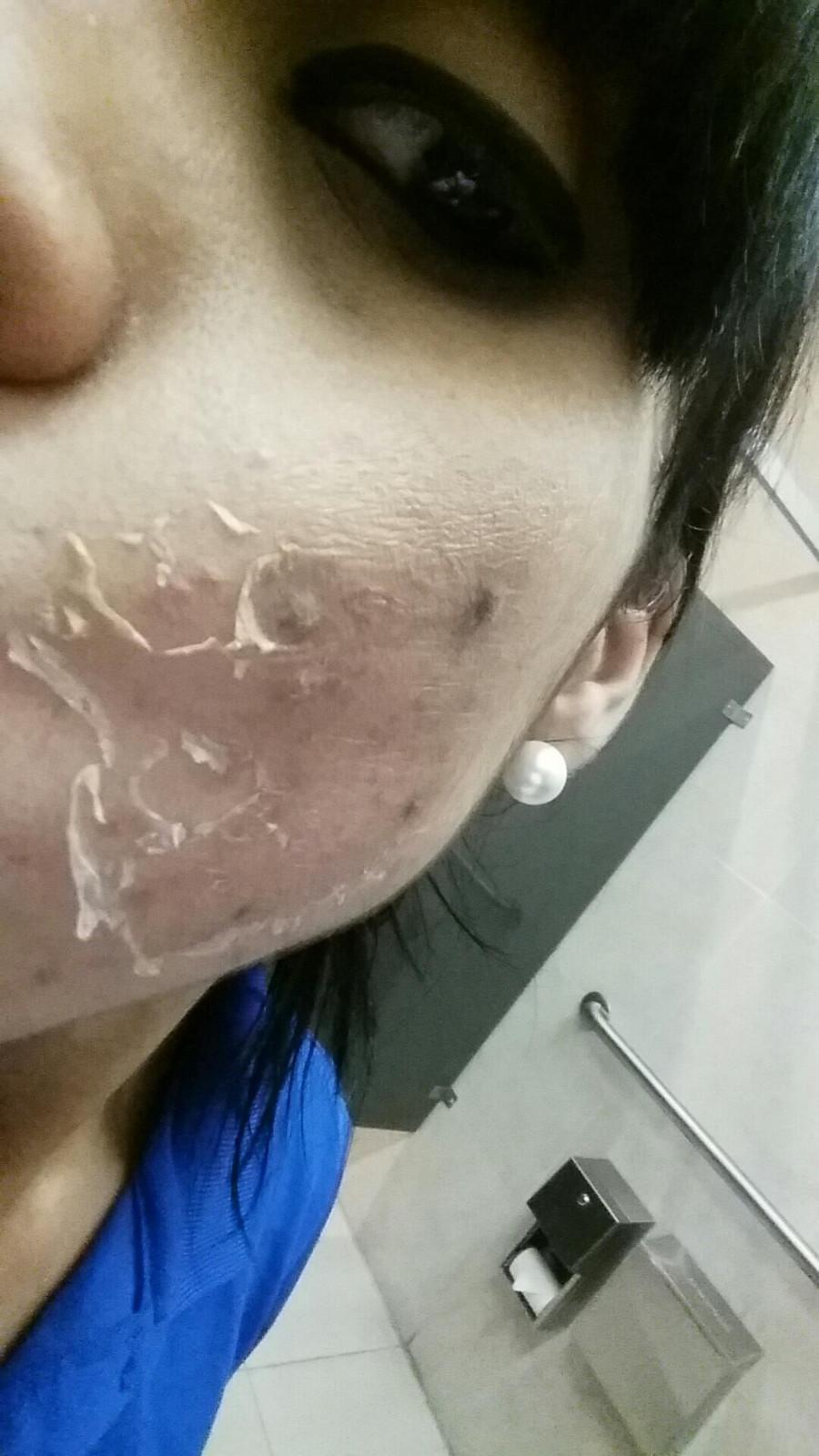 chemical peel acne hyper-pigmentation