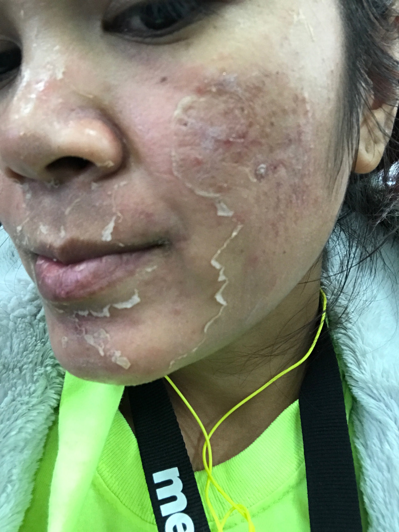 chemical peel with powerful peeling action