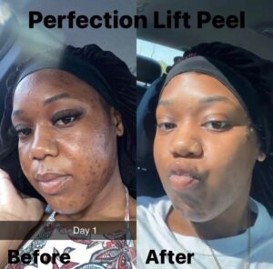 perfection lift amazing results
