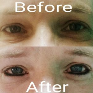 permanent makeup eyeliner before and after