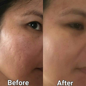 microneedling tampa before and after