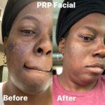 prp (vampire) facial in Tampa