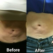 ultrasonic cavitation before and after tampa