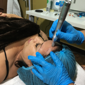 microneedling services in Tampa