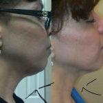 radio frequency skin tightening on neck