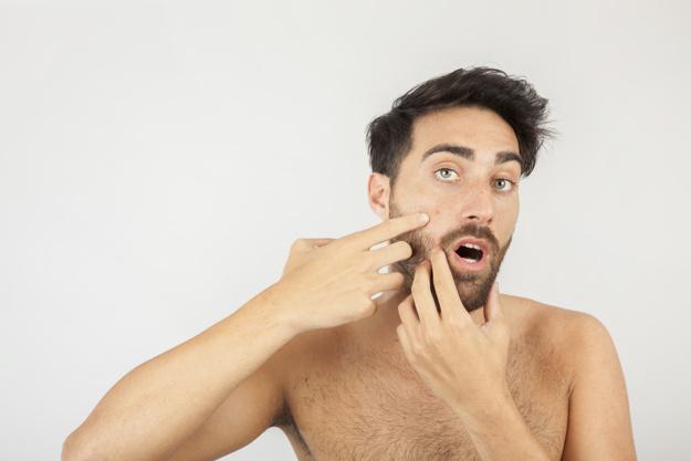 Acne Breakout - Revicore