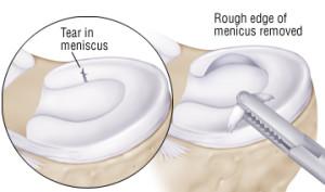 meniscustrim
