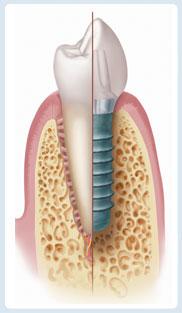 Dental-Implant-staumann