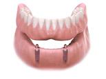 Multi-Tooth Implant