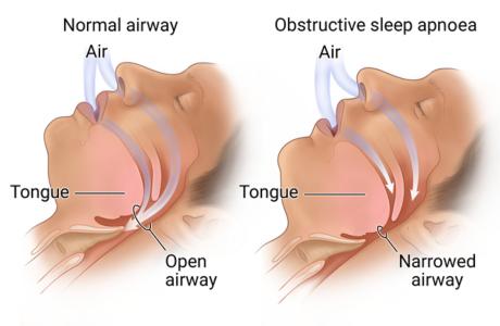 Obstructive Sleep Apnoea (OSA) in Torrensville, Thebarton, Mile End, Hilton, Cowandilla, Brooklyn Park, Underdale, Hindmarsh, Welland, Allenby Gardens, Flinders Park, Western Adelaide SA