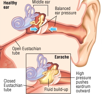Ear Infections: What you need to know..
