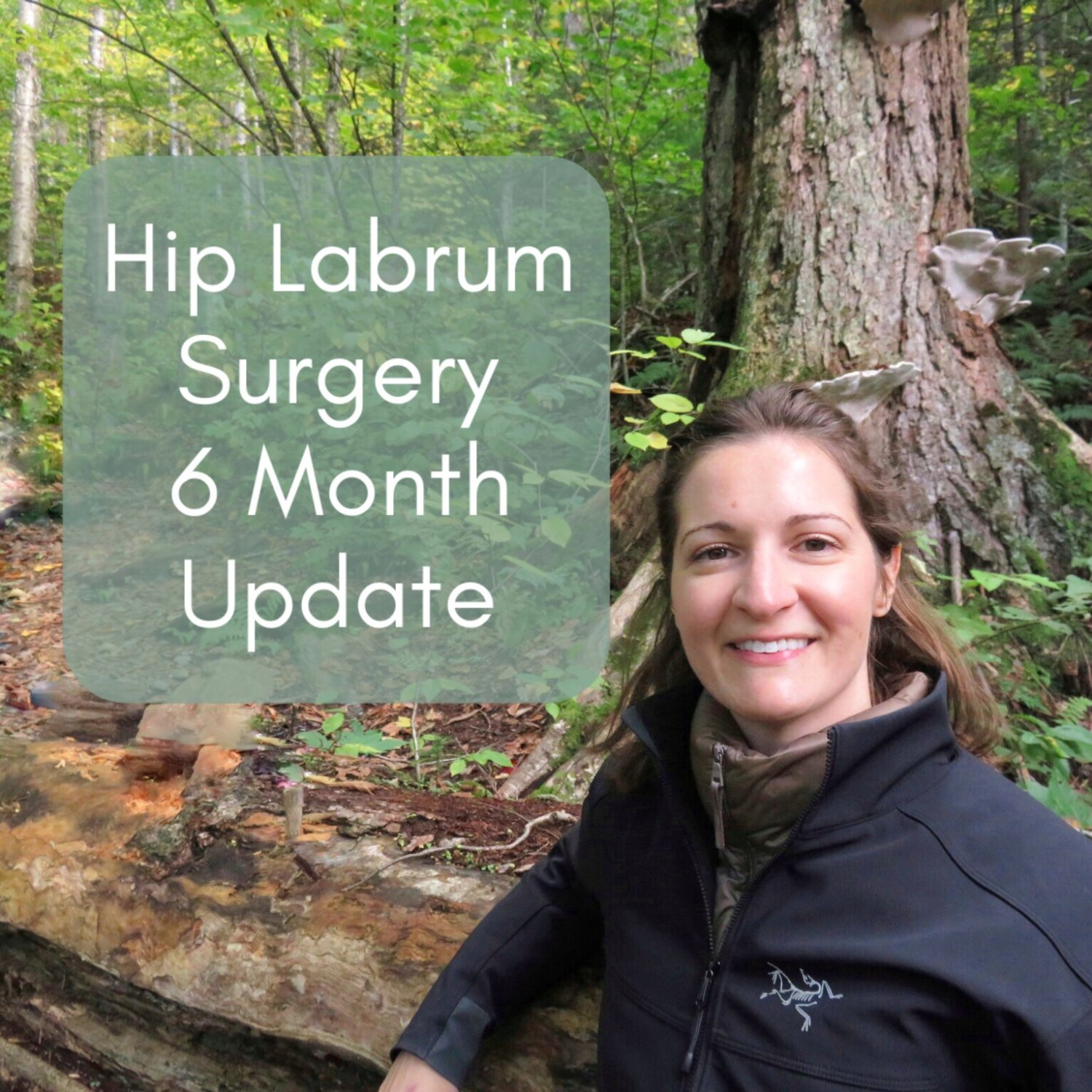 6 Month Update After Hip Labral Tear Surgery