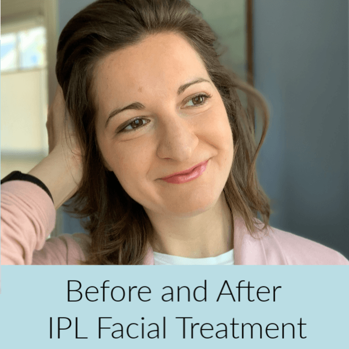 IPL Treatment to Diminish Melasma and Facial Hyperpigmentation. IPL Before and After