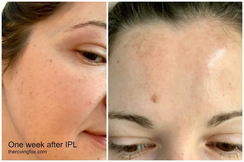 IPL treatment one week after IPL treatment photos