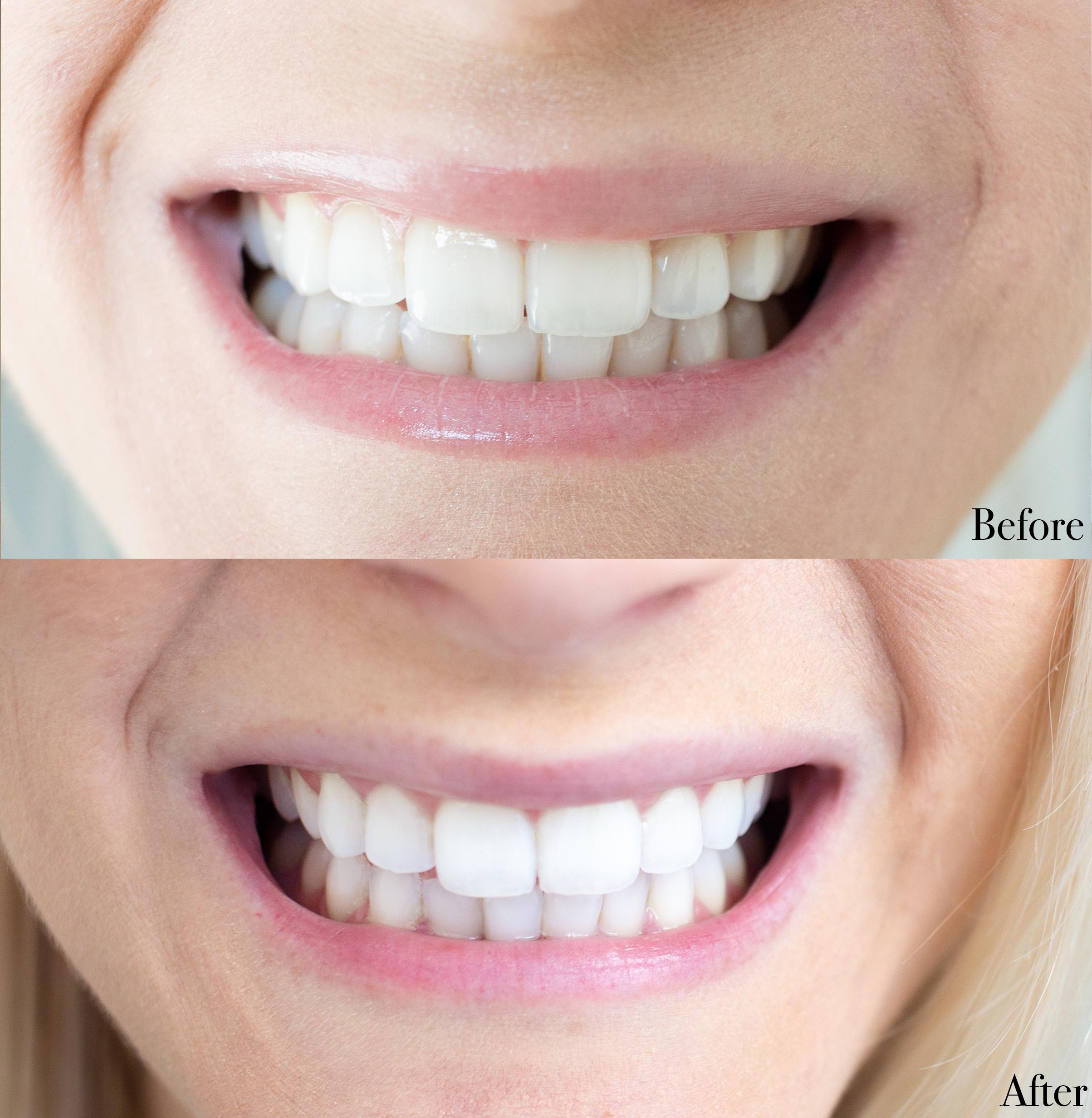 At Home Teeth Whitening For Sensitive Teeth Jenna Danielle