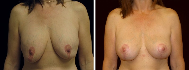 Breast Implant Removal, Breast Enhancement By Fat