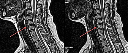 Bulging disc in neck – before and after upper cervical care