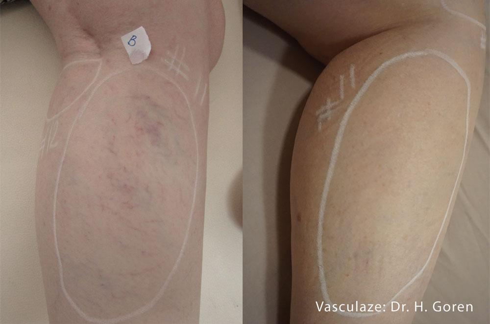Vasculaze 1