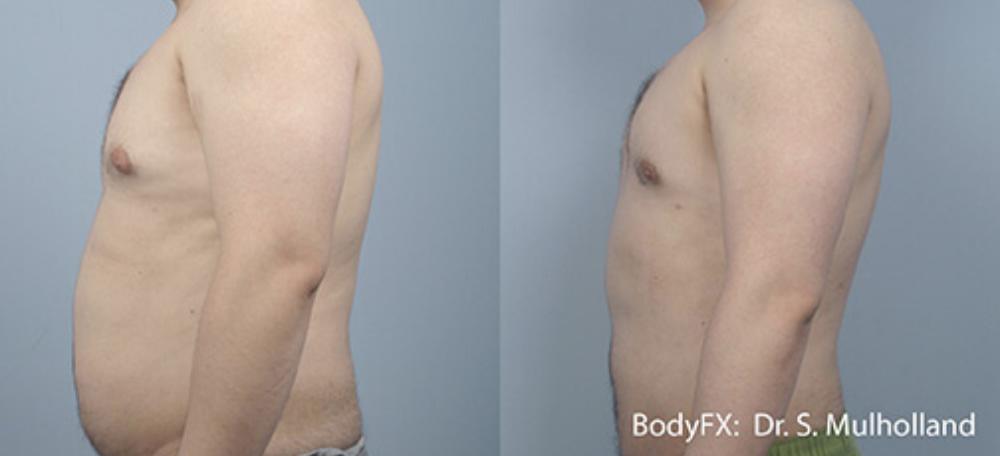 BodyFX 1