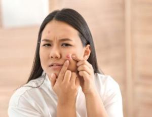 Mencuci Muka Dengan Rutin Dapat Menghalangi Jerawat Muncul?