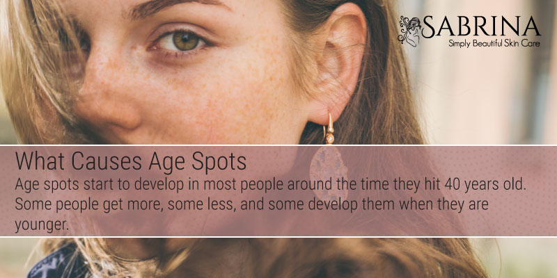 AgeSpots-Causes