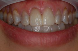 AFTER - Two New All Ceramic Crowns