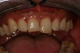 BEFORE - Chipped Front Teeth