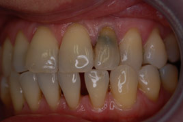 BEFORE - Old Root Canal Stained Tooth